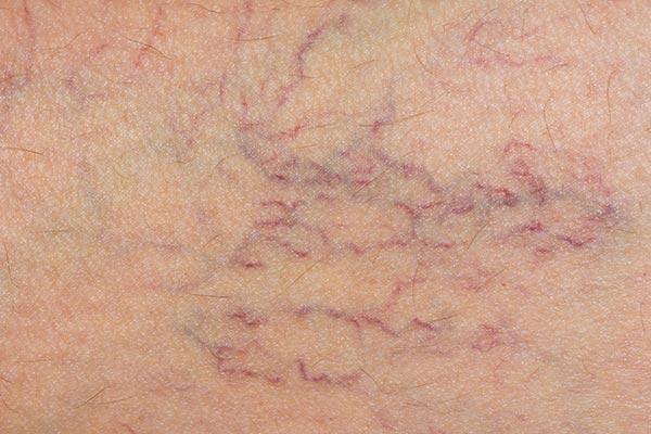 เส้นเลือดฝอยที่ขา
