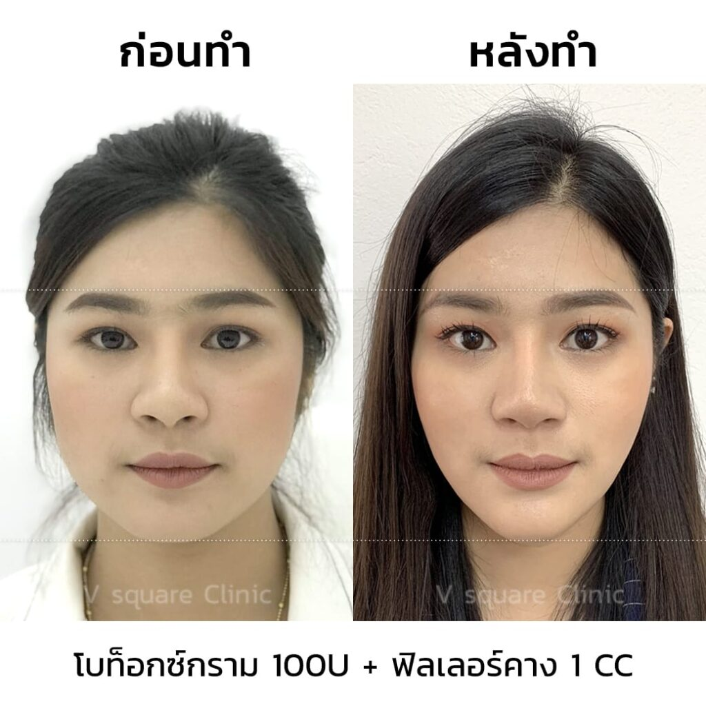 botox-Filler1CC