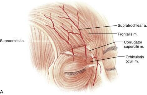 เส้นเลือดบริเวณหน้าผากมีเส้นที่เชื่อมเข้าสู่ดวงตา