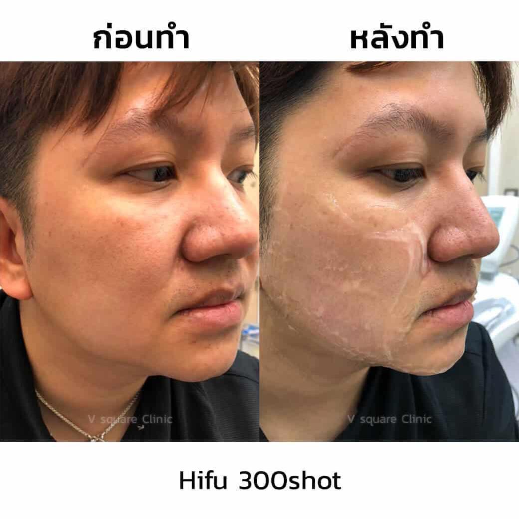 รีวิว-hifu-300shot